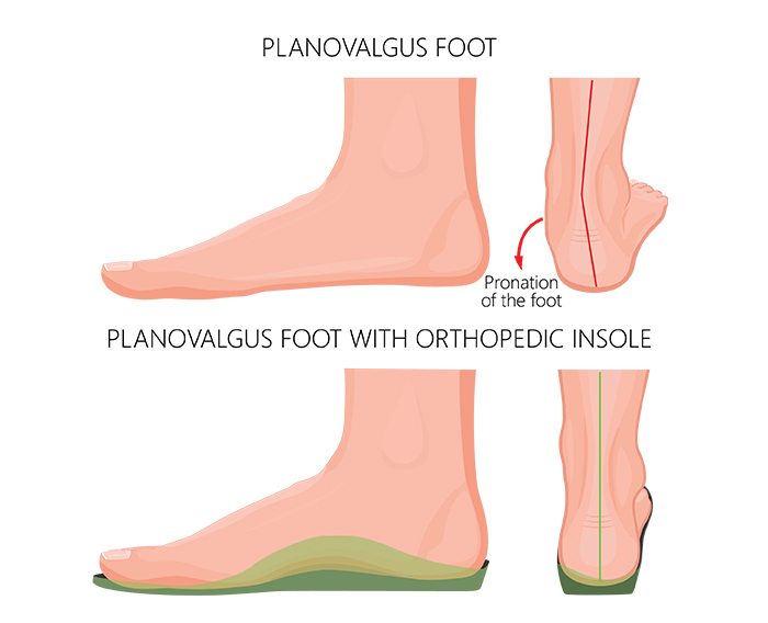 Planovalgus Foot